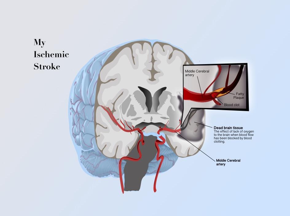 My Stroke-2